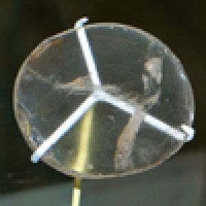 Ancient Optical Lenses